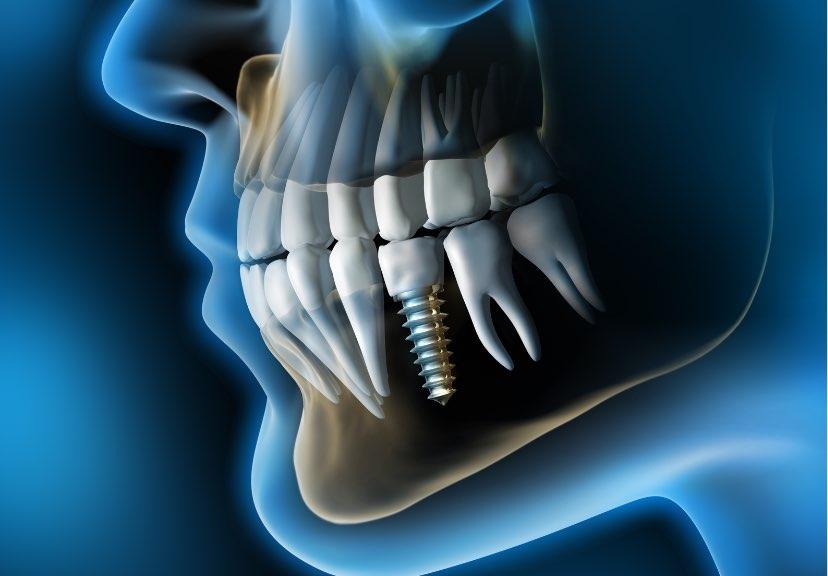 Implantologia | Studio dentistico Buganè