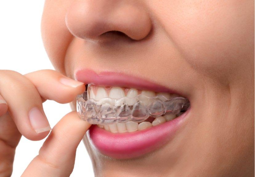 Ortodonzia invisibile | Studio dentistico Buganè