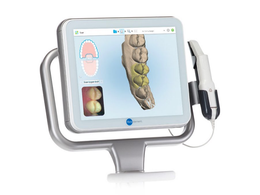 Scanner intraorale | Studio Dentistico Buganè